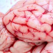 脳Pixabay血管
