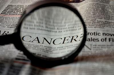 新たながん治療「免疫療法」の臨床試験、年内にも開始か